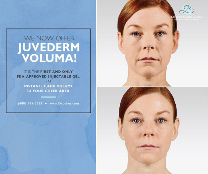 June-2015-Juvederm-Voluma